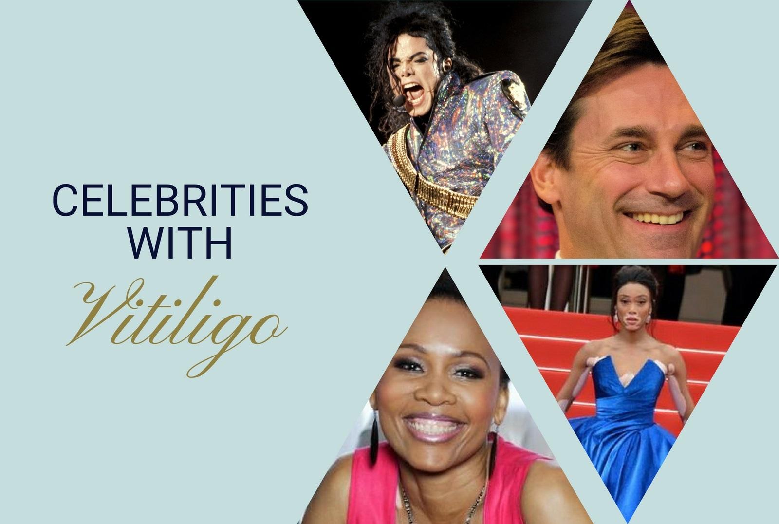 Famous Vitiligans 56 Celebrities With Vitiligo Unite For Vitiligo