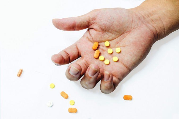 Vitiligo - Diagnosis and treatment