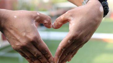 vitiligo and wedding