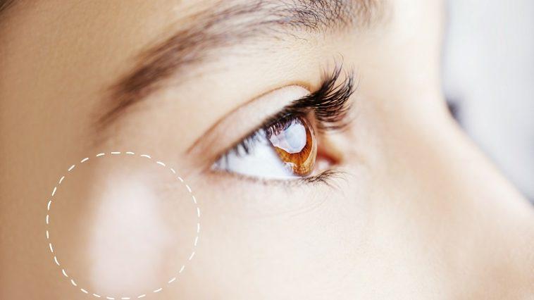 Segmental Vitiligo Symptoms Cause Treatment Options Unite For Vitiligo