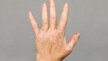 prevent vitiligo