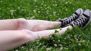 teen with vitiligo
