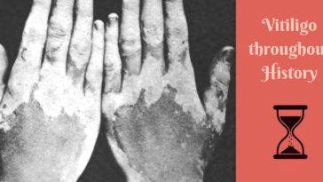 vitiligo history