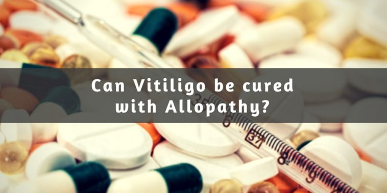 Allopathy Treatment Vitiligo