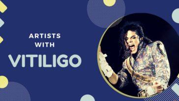 Famous Artists with Vitiligo