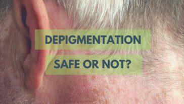 Depigmentation in vitiligo