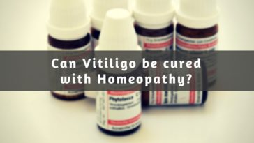 homeopathy treatment for vitiligo