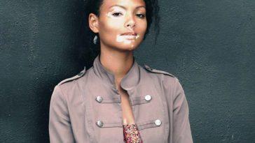 rejection in vitiligo
