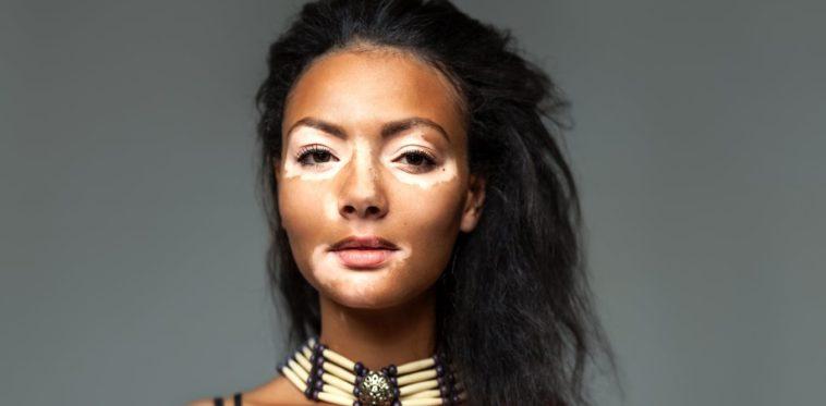 social skills vitiligo