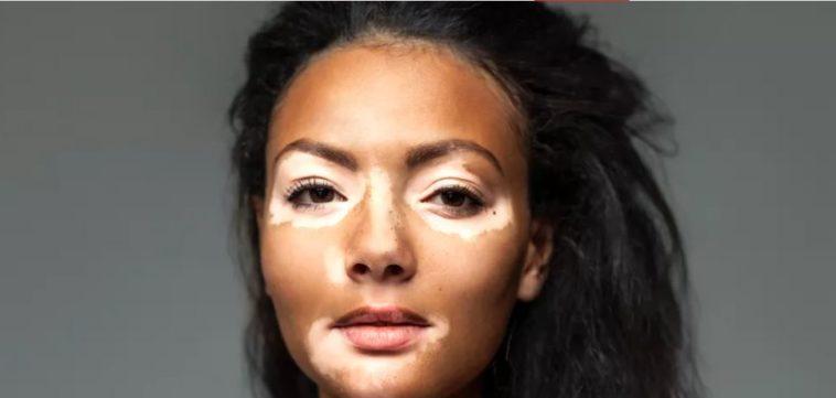 suicide in vitiligo