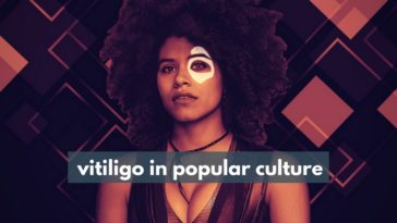 vitiligo in popular culture