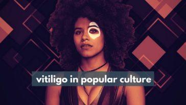 vitiligo in popular culture