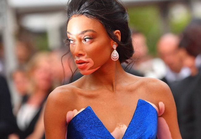 Winnie Harlow in Blue Dress
