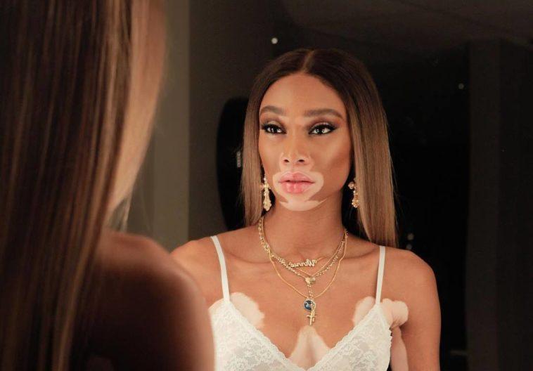 vitiligo beauty