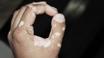 self-acceptance in vitiligo