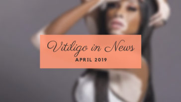 Vitiligo in April 2109