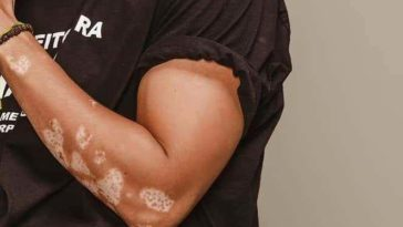 confetti vitiligo