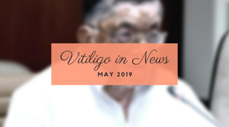 Vitiligo in News