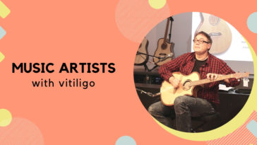 Music Artists with Vitiligo