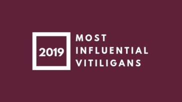 Most Influential Vitiligans