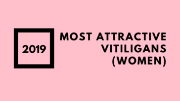 Most Attractive Vitiligans (women)