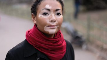 Inferiority Complex in Vitiligo