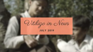 Vitiligo News July 2019