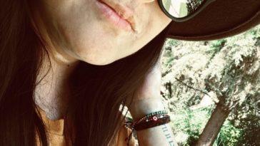 Andrea Islas vitiligo