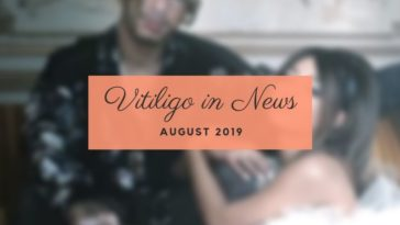Vitiligo in News