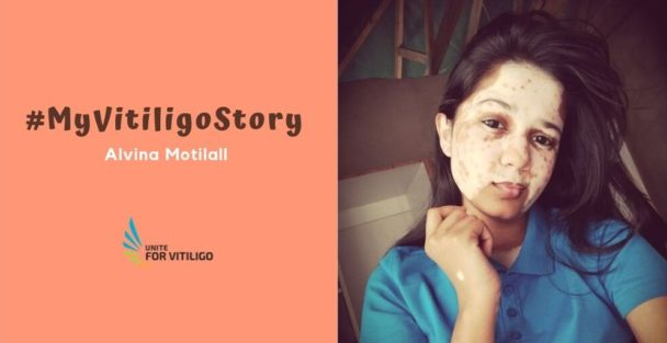 Alvina Motilall's vitiligo story