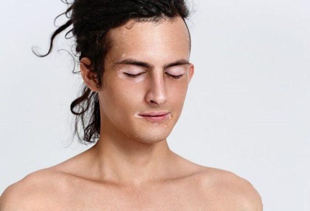 Psychodermatology for Vitiligo