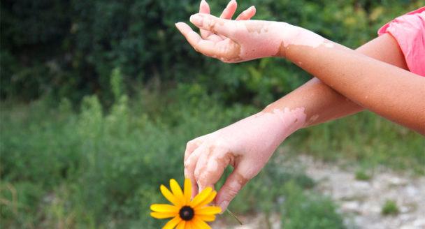 beyond vitiligo