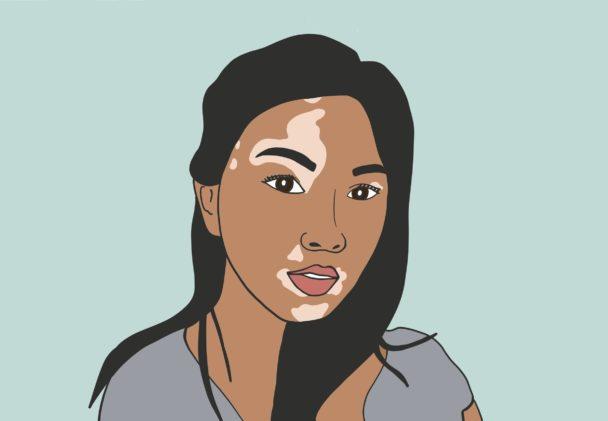 Cellular Grafting Surgeries for Vitiligo