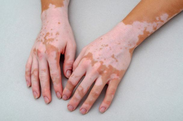 Tissue grafting surgeries for vitiligo