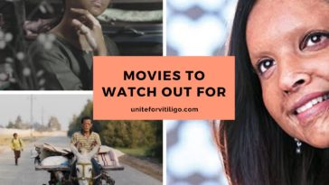 Visual Difference Movies Vitiligo