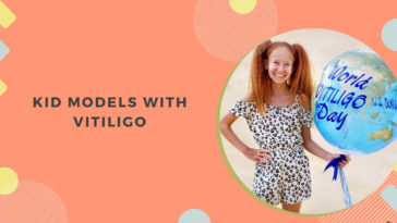 Kid Models with Vitiligo