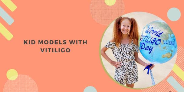 Kid Models with Vitiligo
