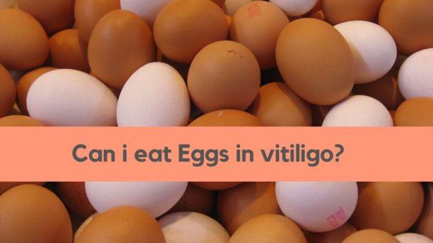 eggs vitiligo