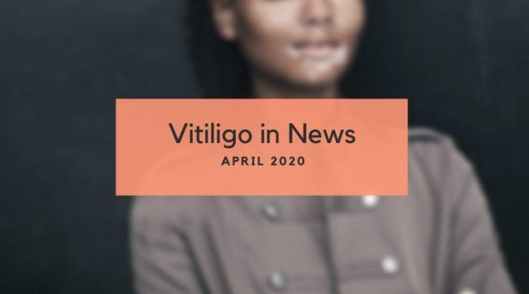 Vitiligo News Apri 2020
