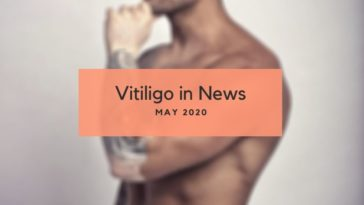 Vitiligo News May 2020