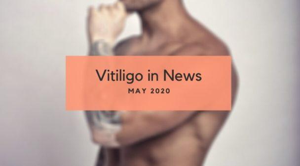 Vitiligo News May 2020