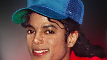 michael jackson vitiligo.