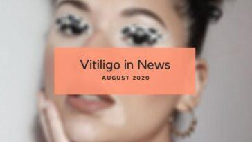 Vitiligo News July 2020