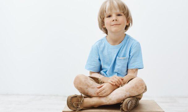 kid with vitiligo