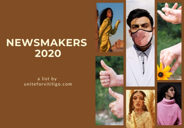 newsmakers with vitiligo 2020