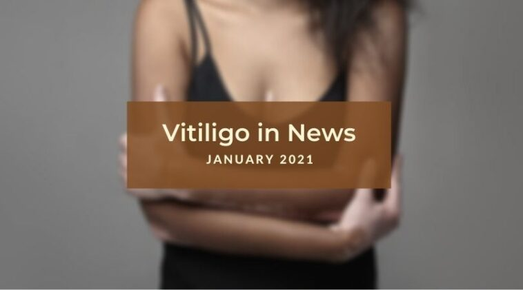 Vitiligo News January 2021