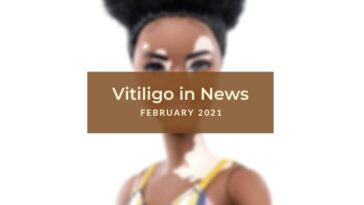 February 2021 Vitiligo News
