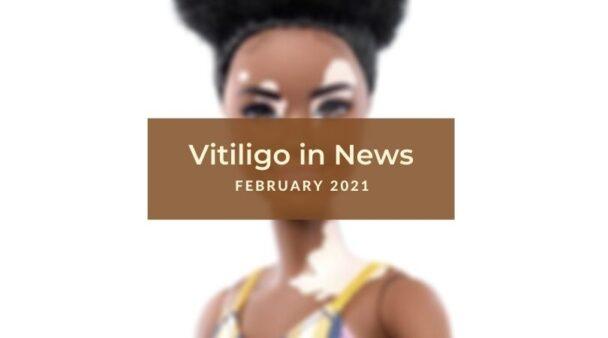 February 2021 Vitiligo News