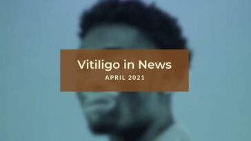 Vitiligo News - April 2021