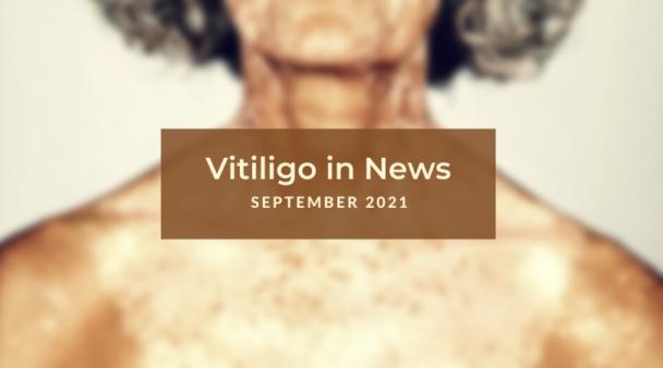 Vitiligo News - September 2021